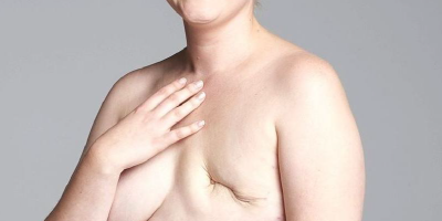 Más allá de la mastectomía.